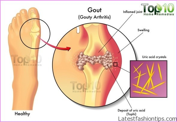 Home Remedies to Gout_5.jpg