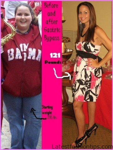 Weight Loss Surgery and Other Huge Mistakes_8.jpg
