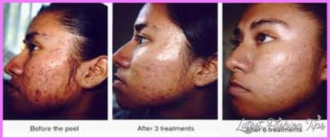 Chemical Peels - Tampa, FL Dermatologist