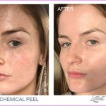 TCA Chemical Peel | Award Winning | The Laser and Skin Clinic