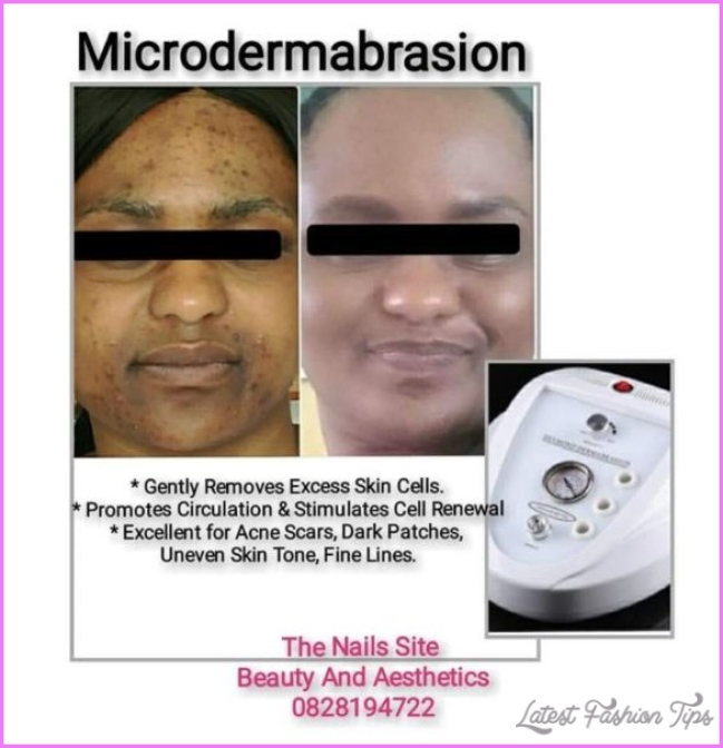 Skin Peels and Microdermabrasion | Chatsworth | Gumtree Classifieds ...