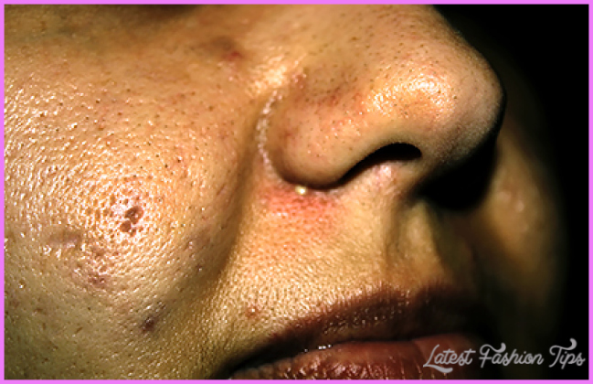 What can treat large facial pores? | American Academy of Dermatology