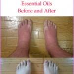Essential Oils For Sunburn Treatment – Mild To Severe | SurgingLife
