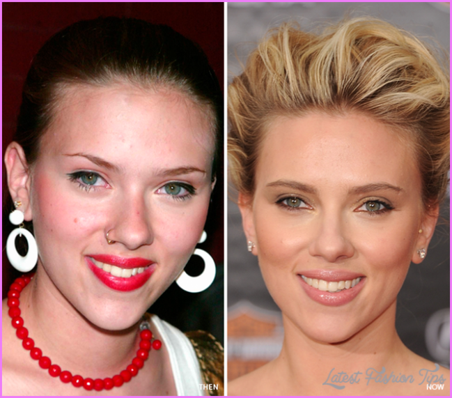 Scarlett Johansson's Skin Care Routine - Adult Acne - Skin Care ...
